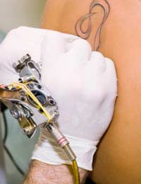 Tattoo Tattoo Removal Ink Skin Surgical