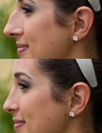 Nose Nose Job Revision Rhinoplasty