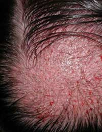 Hair Transplant Follicular Unit